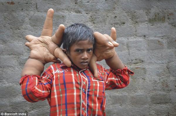 شاهد الطفل الذي حير الأطباء والعلماء بحجم يديه العملاقتين !