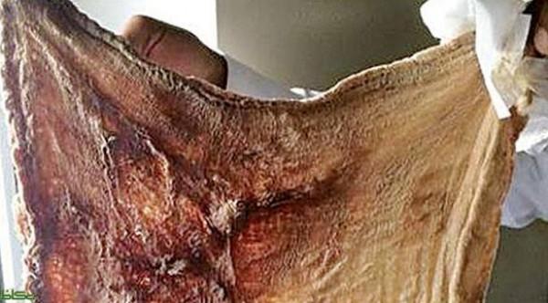 سعودية تفاجأ بـ قطعة قماش  في بطنها بعد ولادتها بعملية قيصرية