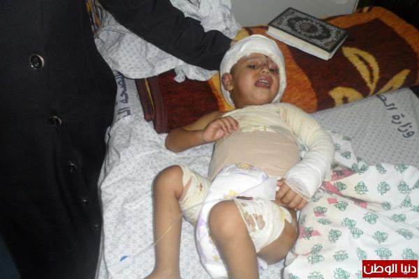 تآكلت أذنه وأجزاء من جسده ..محمد الدبارى دخل المستشفى بحروق بسيطة واستقر فيها بنقل جرثومة