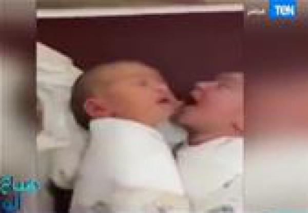 """طفل حديث الولادة يأكل """" خد """" أخيه"""