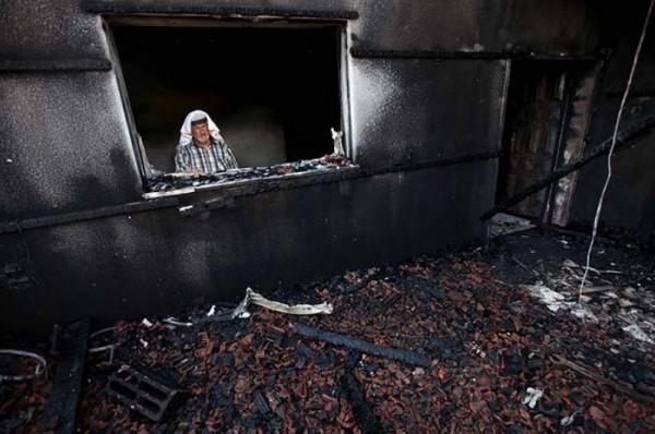 """مستشفيات إسرائيلية: حالة عائلة """"دوابشة"""" الصحية خطرة للغاية"""