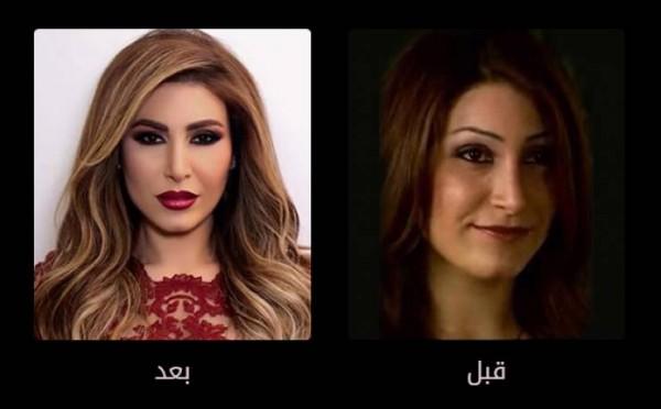 فنانات وبعد عمليات التجميل