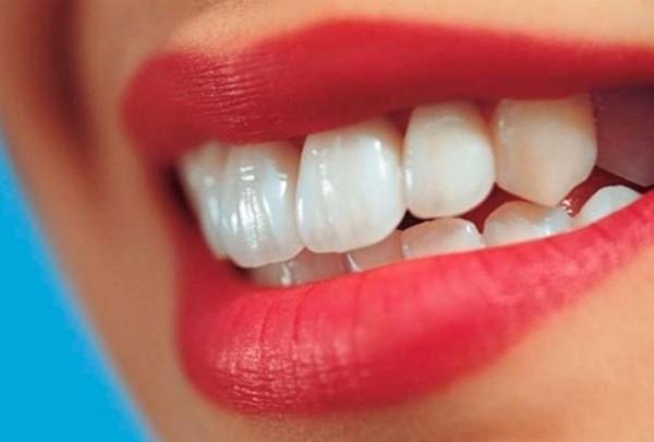 7 أنواع طعام تبييض أسنانك بشكل طبيعي