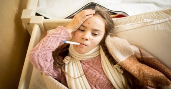 الحصبة والجدري المائي: كيف أمنع انتقال العدوى بين أطفالي؟