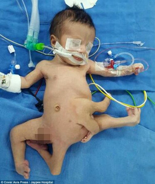 Baby born with 8 LIMBS is flown home to India after undergoing world first surgery to remove his extra arms and legs