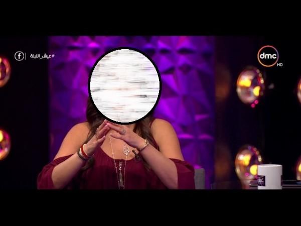 فنانة مصرية تكشف عن اصابتها بعاهة مستديمة