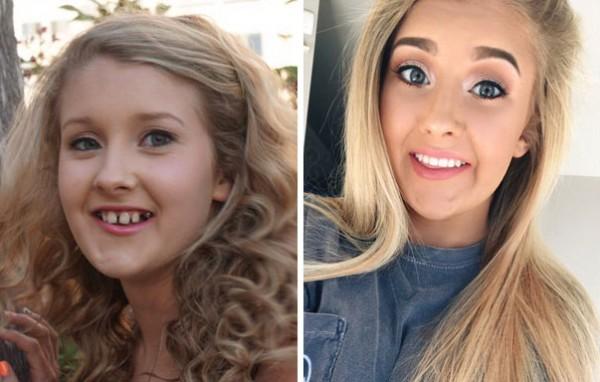 لقطات صادمة لأشخاص قبل وبعد تقويم الأسنان دنيا الوطن