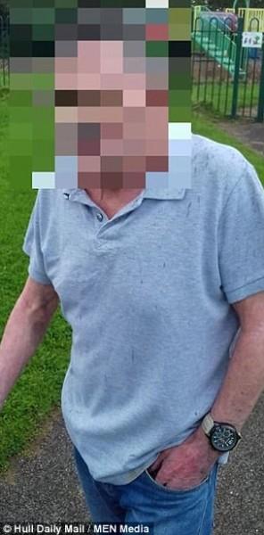 رصد فيديو مُروع لسبعيني يزرر بنطاله بعد اعتدائه على طفلة