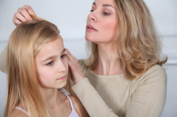 علاجات طبيعية لقمل الرأس عند الأطفال