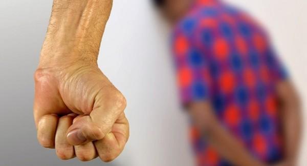 الكويت: سَكَبَ مادة حارقة على وجه وجسد زوجته وعشيقها