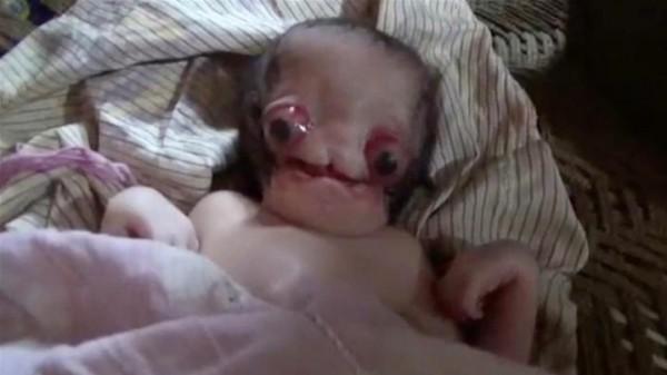 الهند: ولادة طفل بعيون منتفخة تشبه المخلوقات الفضائية