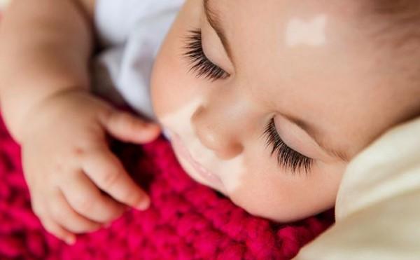 بداية ظهور البهاق عند الاطفال، كيف تكون؟