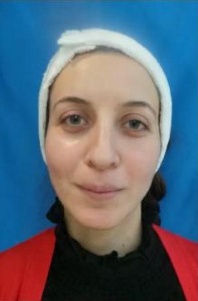 معلمة فلسطينية تفقد وعيها بعدما غيرت جويل شكلها تماما