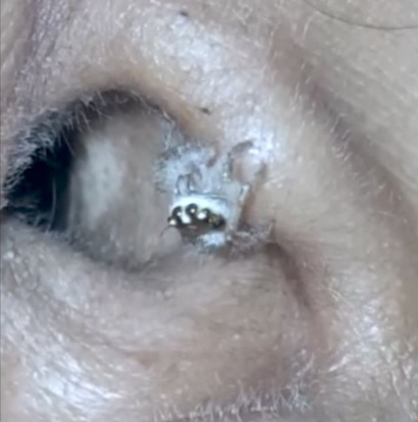 مشاهد مُروعة لن تُصدق أين عاش هذا العنكبوت لأيام عديدة