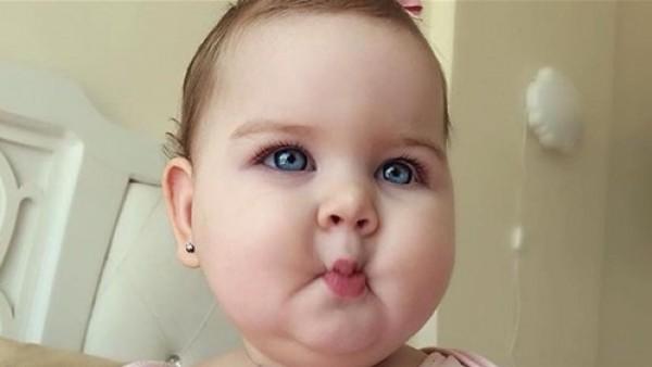 طفلة سورية تجذب آلاف المعجبين بما تملكه في وجهها
