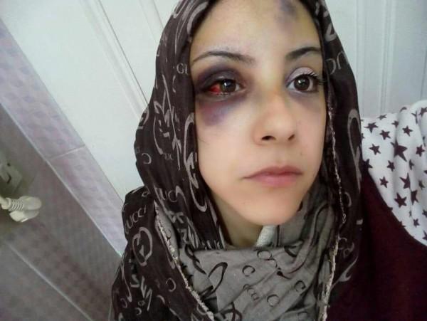 فتاة مصرية اختارت حريتها فكان هذا مصيرها