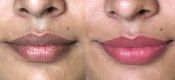 6 علاجات منزلية للسواد حول الفم دنيا الوطن