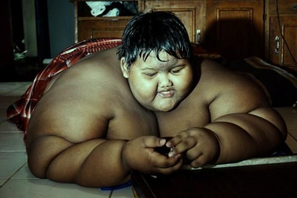 شاهد كيف أصبح شكل الطفل الأكثر بدانة في العالم