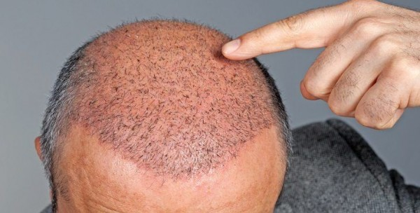 مفاجئة للرجال.. نمو الشعر بات ممكنا في ستة أيام   9998889280