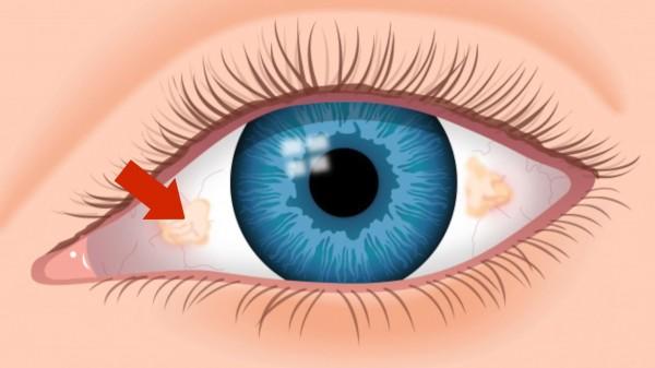نتيجة بحث الصور عن ماذا يعني ظهور بقع صفراء في العينين؟