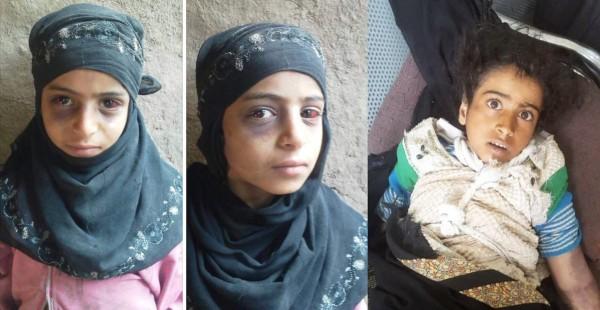 """صور قبل وفاتها بلحظات.. غضب في اليمن ودعوات للانتقام """"قانونياً"""" للطفلة الراحلة """"أصيلة النهمي"""""""