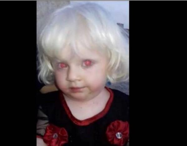 فيديو: ما قصة الطفلة صاحبة العيون الحمراء؟.. إليكم التفاصيل