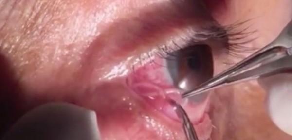 مشهد مروع لطبيب يزيل دودة طولها 15 سم من عين رجل