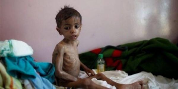 وفاة أسرة فقيرة بمحافظة الحديدة باليمن