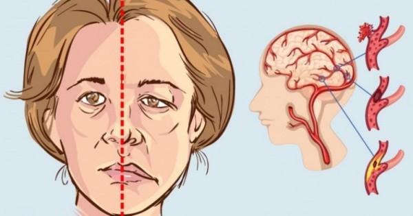 Image result for اكتشفي علامات الشفاء من الجلطة الدماغية