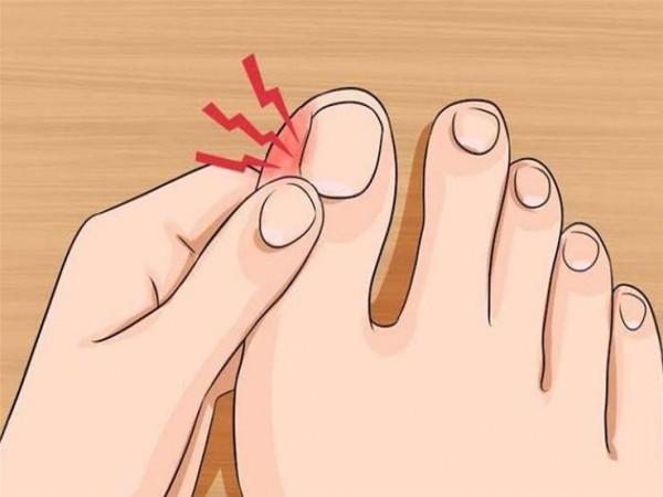 تعاني من انغراس الأظافر في الجلد؟ طرق بسيطة للعلاج