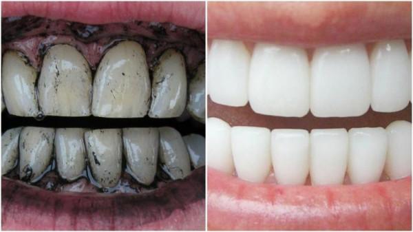 لا تفسد إطلالتك الأنيقة.. 6 طرق فعالة لتبييض الأسنان في المنزل