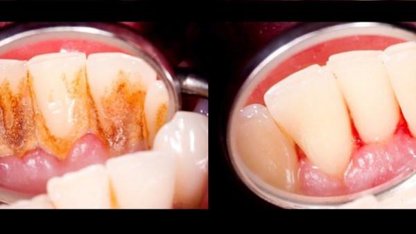 3 وصفات تنعش فمك وتخلصك من جير الأسنان في دقائق