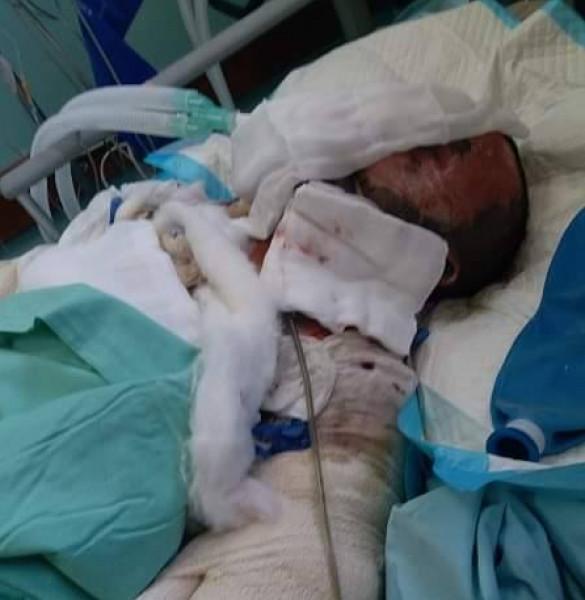 """حرق نفسه بالأمس.. عائلة مسعود تُناشد الرئيس إنقاذ ابنهم """"بلال"""""""