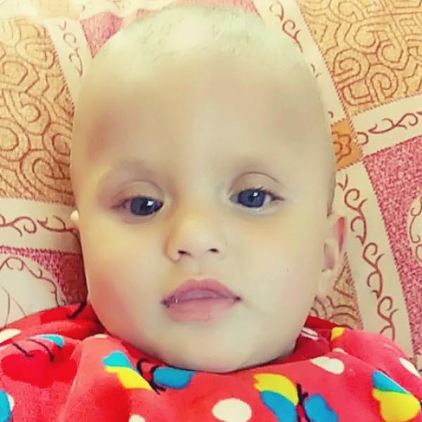 """الطفلة """"إيمان"""" قد تفقد نظرها.. وعائلتها تُناشد الرئيس عباس باستكمال علاجها"""