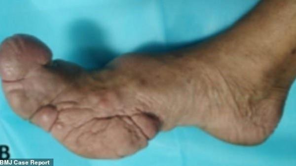 أطباء ينشرون صوراً صادمة لأغرب أصابع بشرية يمكن رؤيتها