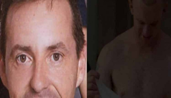 في حالة نادرة.. وفاة رجل خلال عملية زراعة شعر في إسبانيا