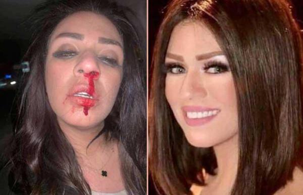 قبل سمية الخشاب.. فنانات تعرضن للضرب من أزواجهن