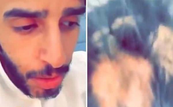فيديو صدم مُشاهديه.. شاب سعودي يوثق إصابته بسبب العين