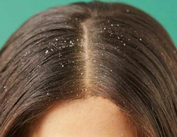 نتائجهما فورية.. وصفتان منزليتان لتكثيف الشعر وعلاج القشرة
