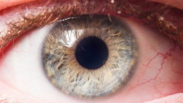 اكتشفها بنفسك.. علامة بالعين تشير لإصابتك بمرض خطير