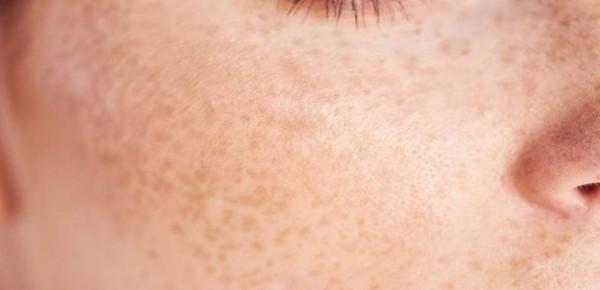 6 أشياء مفاجئة قد تؤثر على بشرتك دون أن تدركيها