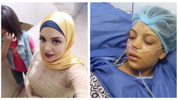 """مأساة.. """"سهر"""" دخلت المستشفى للولادة فأصيبت بفشل كلوي وتسمم فى الدم"""