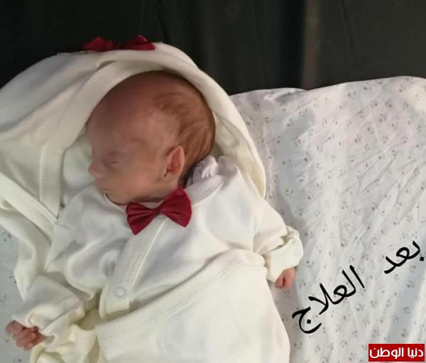 صور: طاقم حضانة مجمع ناصر تتعامل مع طفل حديث الولادة أقل من كيلو