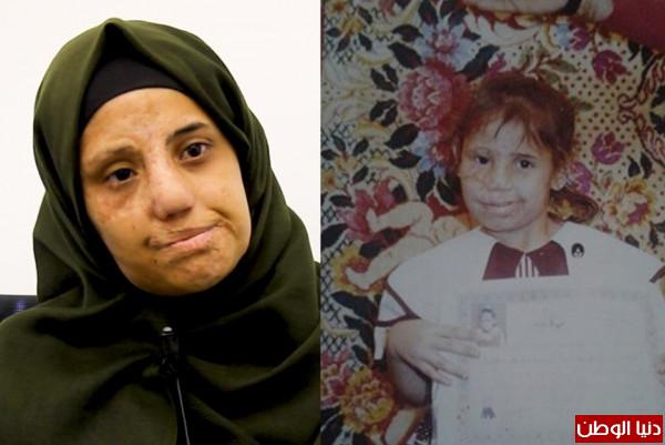 """فقدت حياتها وأحلامها بسبب تشوه وجهها.. مجدولين: """"الرئيس عباس أملي الأخير لاستعادة حياتي"""""""