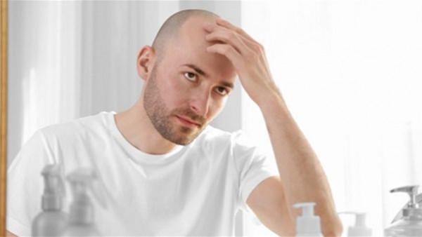 انسى الصلع.. ضمادة جديدة تعيد إنبات الشعر في المنزل