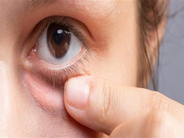 5 طرق لإزالة انتفاخ تحت العيون