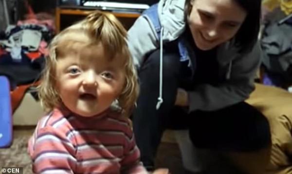 حضانة ترفض طفلة بسبب حجم رأسها