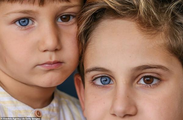 بعين بنية وأخرى زرقاء.. شاهد: حالة نادرة يُولد بها طفلين أتراك