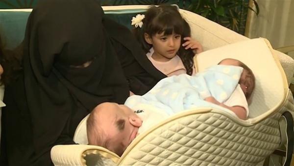 الأغرب بالتاريخ.. توأم ليبي ملتصق بدون فتحة شرج والملك سلمان يأمر بعلاجهما