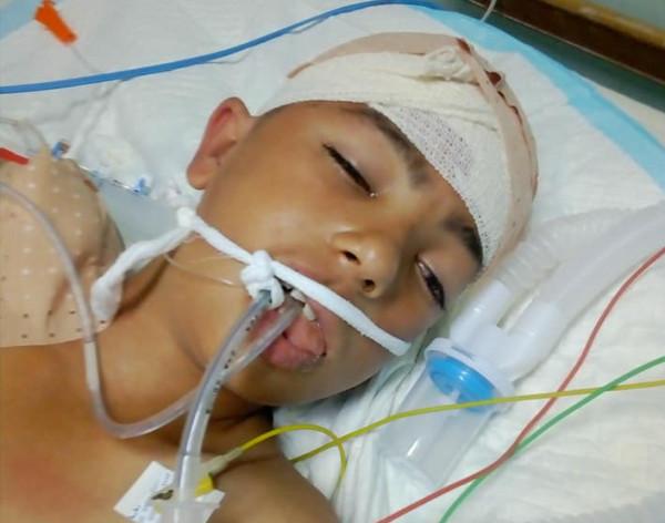 والد طفل مُصاب بقنبلة غاز يُناشد الرئيس سرعة تحويل ابنه قبل فقدانه للأبد